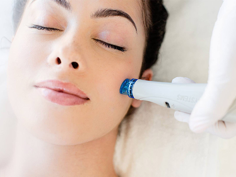 featured tratament hydrafacial hydrodermoabraziune estetpro